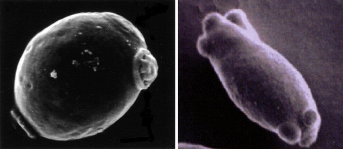 Brettanomyces con su forma esporulada